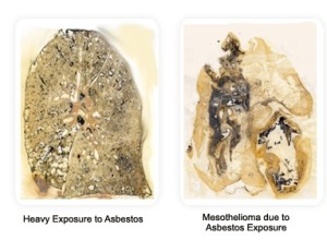 Mesothelioma and Asbestos Cancer Treatment Options