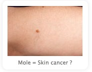 How to know if a mole to be skin cancer