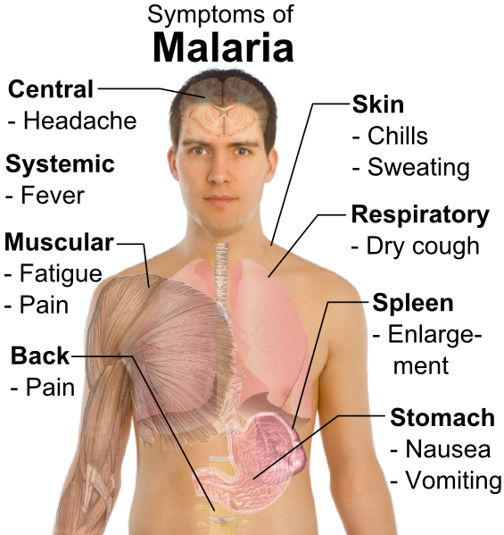 What is Malaria : Symptoms, Tests and Prevention