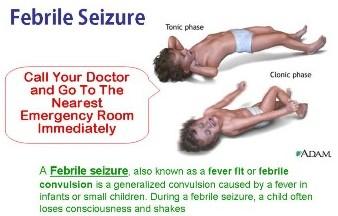 Febrile seizure in children