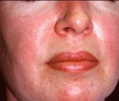 аллергия на лице красные пятна как убрать