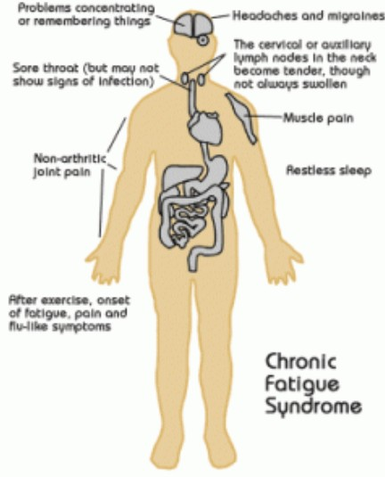 Chronic Fatigue Syndrome : Treatment, Prevention, Causes