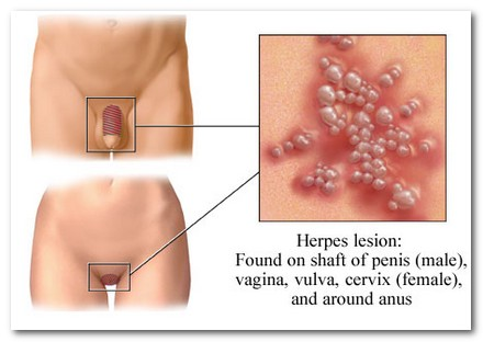 Herpes on the body facts