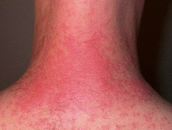 itchy rashes on neck