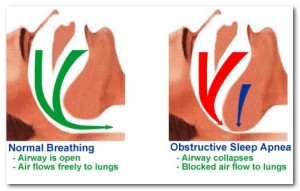 sleep apnea sleep apnoea sleep disorder