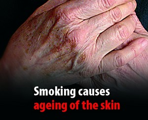 smoking ageing skin effect folds