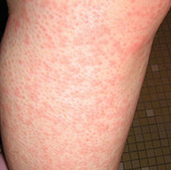 Itchy Legs - Causes and Treatment