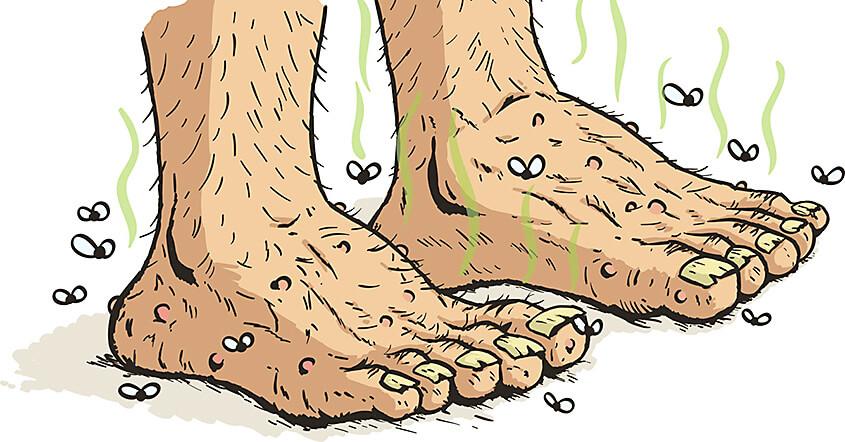 Stinky Feet 51