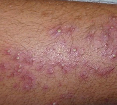 Staph infection-folliculitis