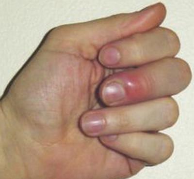 Staph infection-paronychia