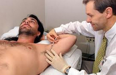 armpit odor-botulinum injection