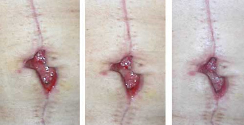 picture : Belly button infection images
