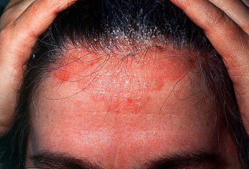 contact dermatitis scalp