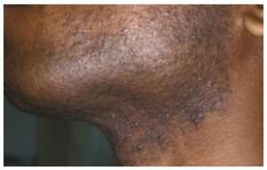 folliculitis barbae