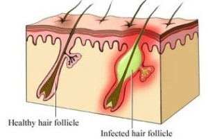 folliculitis - infected hair follicle