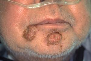 herpetic folliculitis