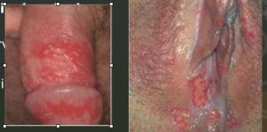 Labia folliculitis
