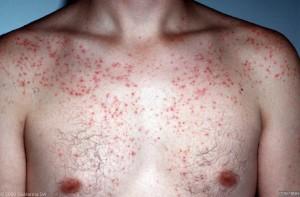 malassezia folliculitis