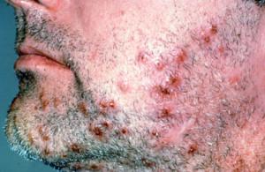 sycosis barbae
