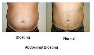 Excessive Bloating and Burping/Belching - Causes and Treatment