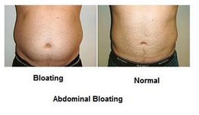 Belching-Abdominal Bloating