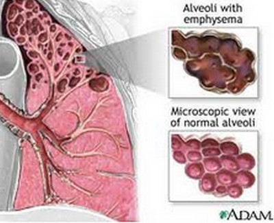 Emphysema-Diseased Alveoli