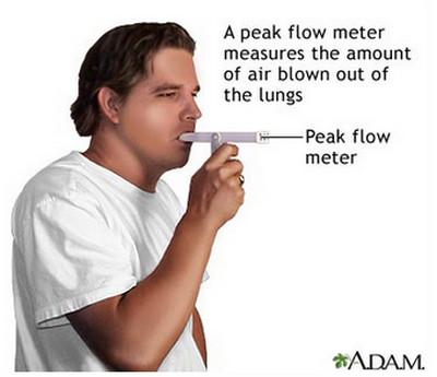 Emphysema-Peak Flow
