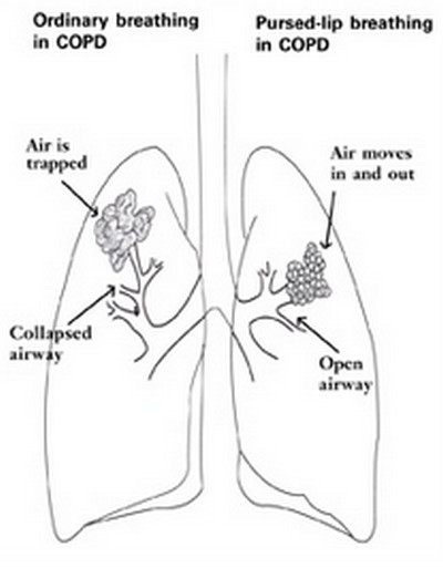 Emphysema-Pursed Lip breathing