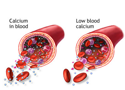 Hypocalcemia-Calcium in the blood