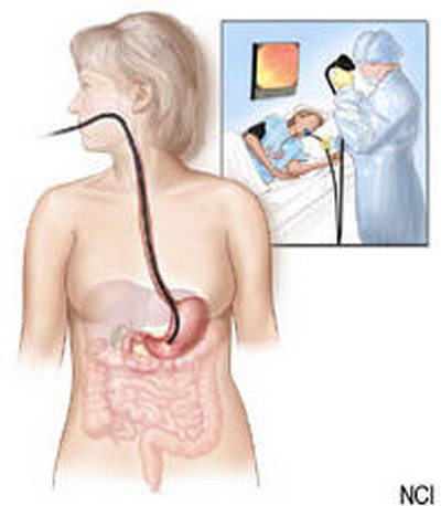Liver Pain-Endoscopy