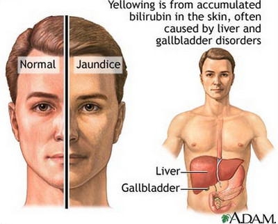 Liver Pain-Jaundice
