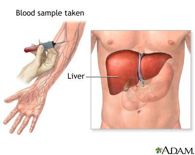 Liver Pain-Liver Function Test