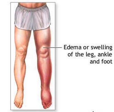 Uremia-Edema