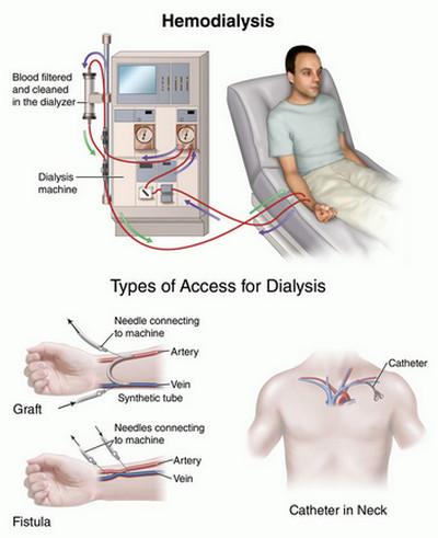 Uremia-Hemodialysis