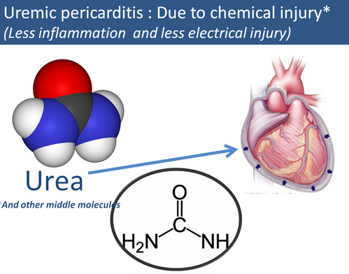 Uremia-Pericariditis