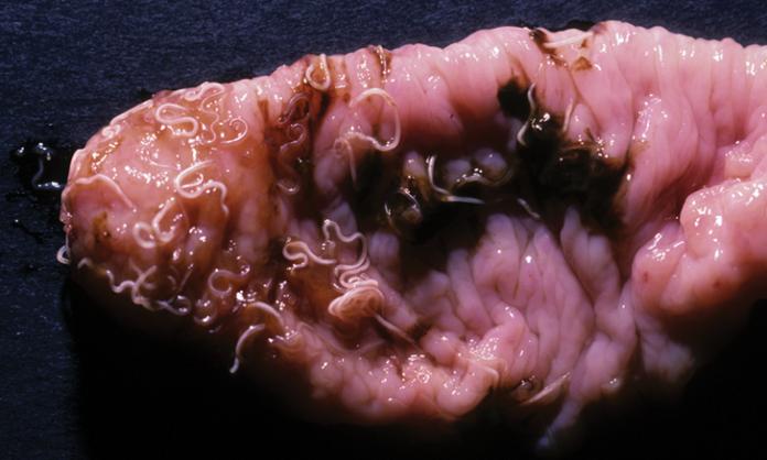Whip Worm Intestinal Parasite