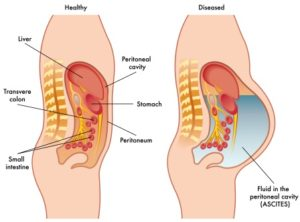 ascites - pathophysiology, causes, symptoms, treatment & ascitic fluid, Skeleton