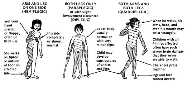 Cerebral Palsy Information Types Pictures Causes
