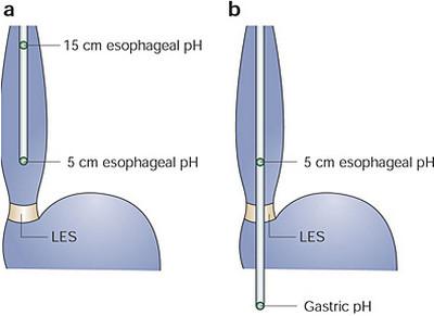 dysphagea-esophageal acid testing