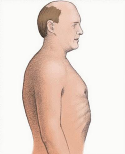 emphysema-barrel chest