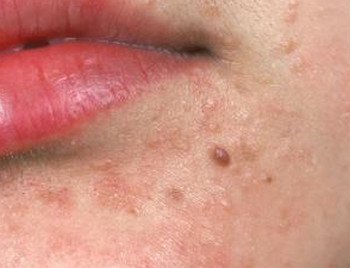 oral-hpv-warts-pictures