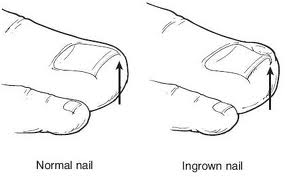 ingrown toenail and normal nail