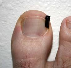 ingrown toenail splint