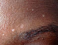 macule vitiligo