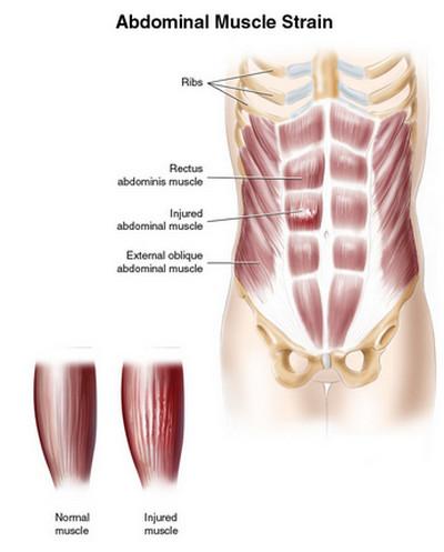 muscle strain-abdominal strain