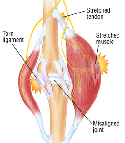 muscle strain-cause
