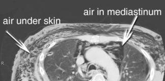 Scan of Subcutaneous Emphysema