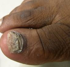 total dystrophic onychomycosis