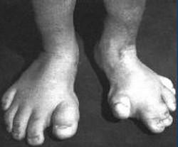 indian girl feetsoles photo