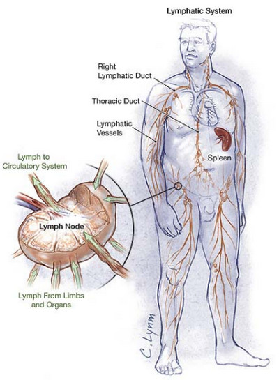 Lymph Node Cancer - Stages, Treatment, Surgery and Prognosis